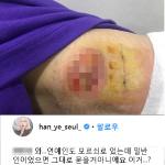 '한예슬 지방종 수술' 의료사고 인정에도 국민청원으로 이어진 까닭
