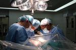 암수치 높은 간암, 색전술(암세포 영양 차단) 뒤 간 이식하면 생존율 '쑥'