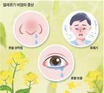코감기 닮은 알레르기 비염…최고 예방법은 꽃가루·황사 피하기
